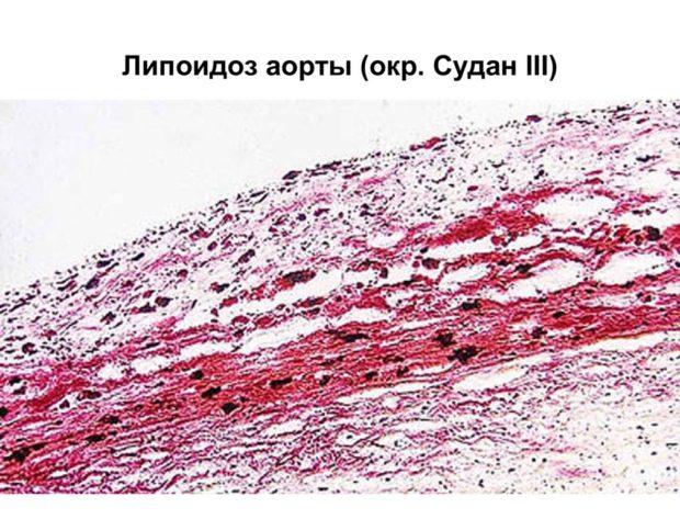 Липоидоз аорты