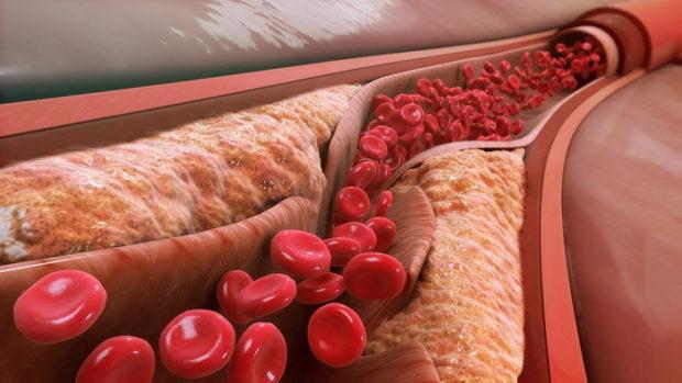 Патогенез атеросклероза