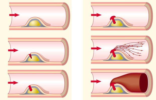 Морфогенез атеросклероза