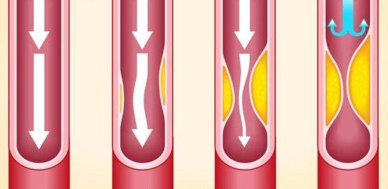 Нестенозирующий атеросклероз - холестерин на стенках сосудов