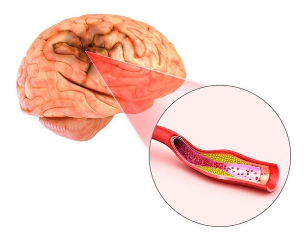 Что такое церебральный атеросклероз