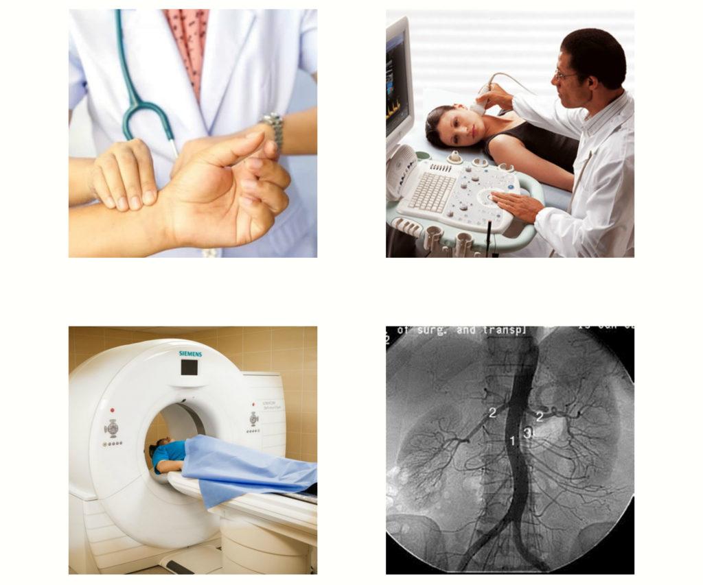 Методы диагностики признаки нестенозирующегоатеросклероза бца