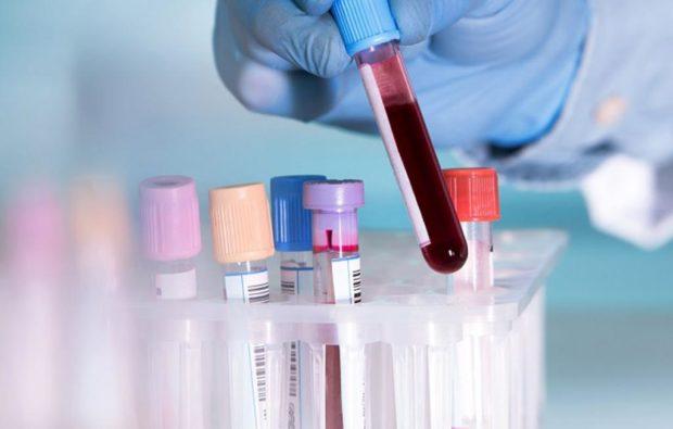 Анализ крови при атеросклерозе