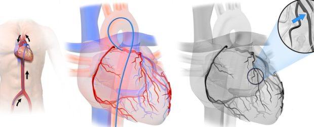 Ангиография сердечных сосудов
