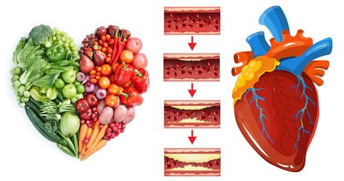 Диета при атеросклерозе сердца