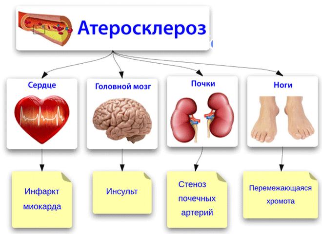 Виды атеросклероза сосудов