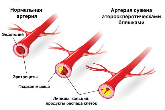 Стадии развития атеросклероза сердца