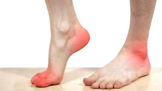 Онемение ног при атересклезе аорты