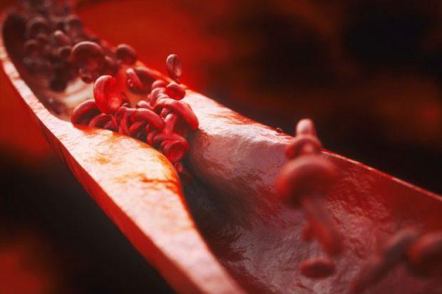 Атеросклероз сосудов - что это