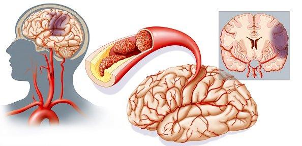 транзиторная ишемическая атака (тиа) и инсульт
