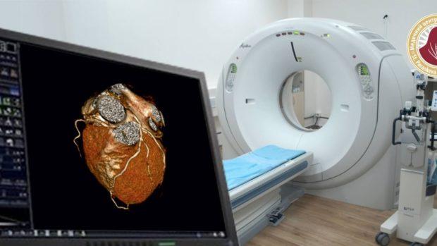 МСКТ диагностика сердца