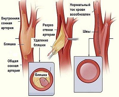 На сонных артериях практикуют метод эндартерэктомии