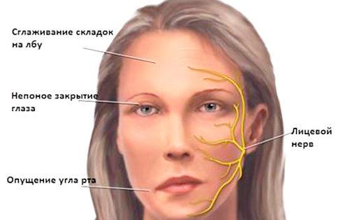 Симметрия лица при атеросклерозе